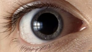 _73086807_p4200327-front_view_of_human_eye_with_dilated_pupil-spl[1]